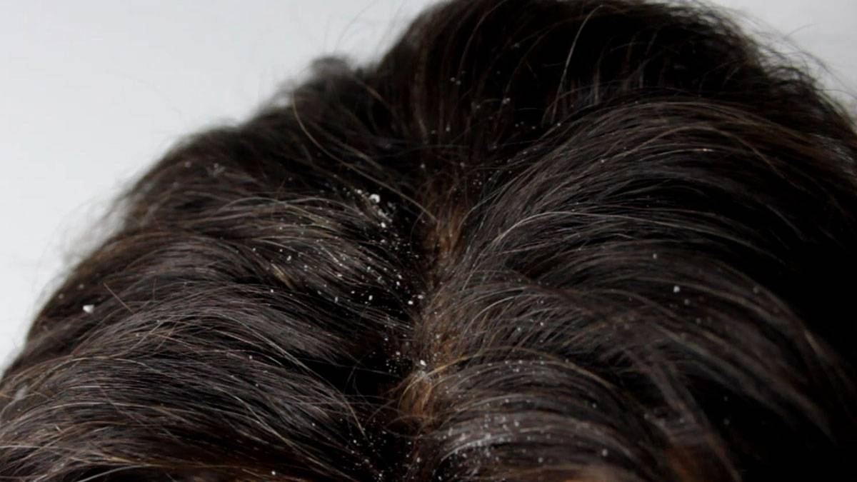 صورة للقضاء على القشره والحكه, ازاى نتخلص من قشرة الشعر بسهولة 6304