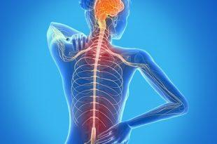 صورة ما لا تعرفه عن التصلب المتعدد , اعراض التصلب اللويحي