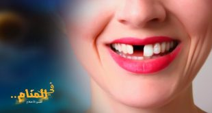 خلع الاسنان في المنام